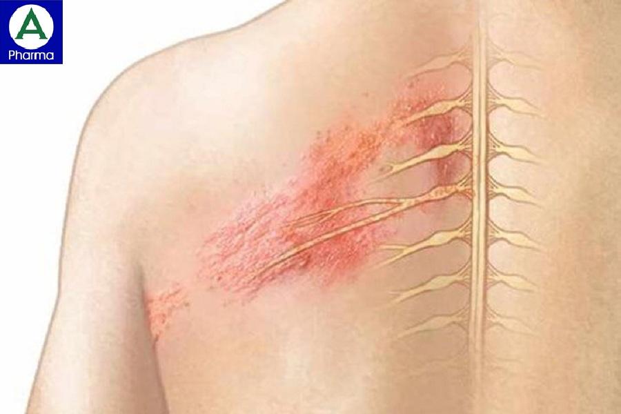 Thuốc Lignopad làm giảm cơn đau thần kinh sau nhiễm virus Zona.