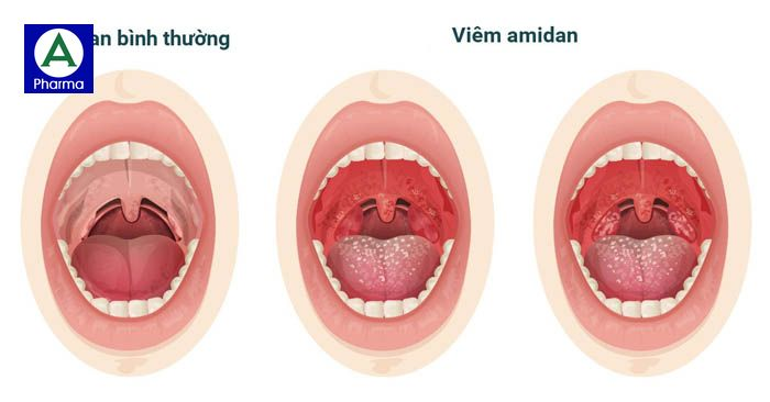 So sánh giữa người bình thường và người bị viêm amidan