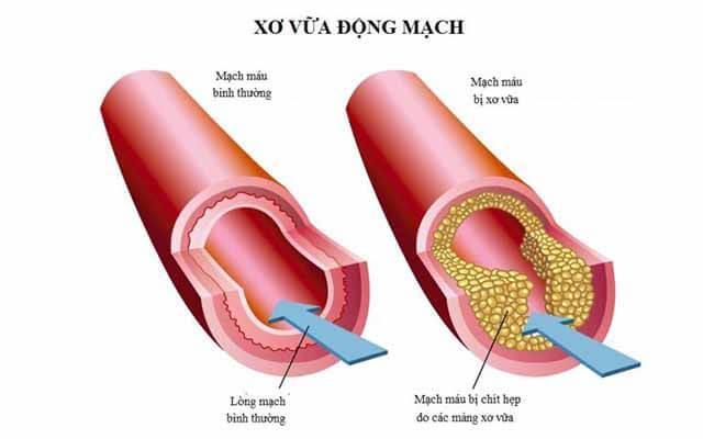 ngăn chặn hình thành xơ vữa động mạch