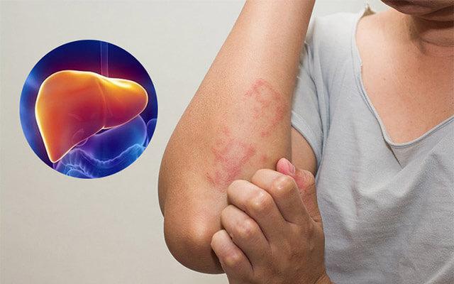 Choliver 100V có công dụng thế nào trong chữa bệnh?