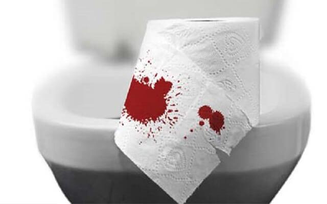 Chứng đại tiện ra máu.