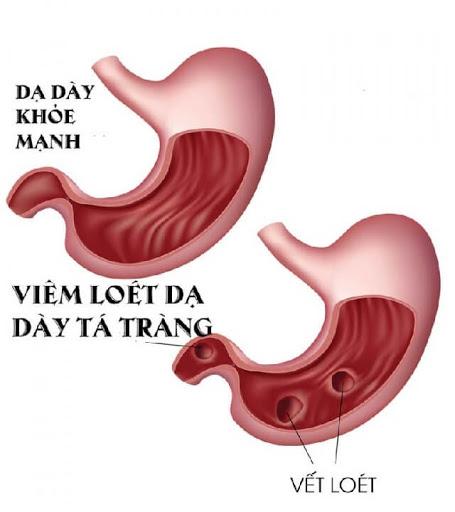 Công dụng khi sử dụng thuốc trị loét dạ dày, tá tràng Pantoprazole Stada 40Mg