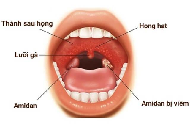 Trị viêm họng hiệu quả