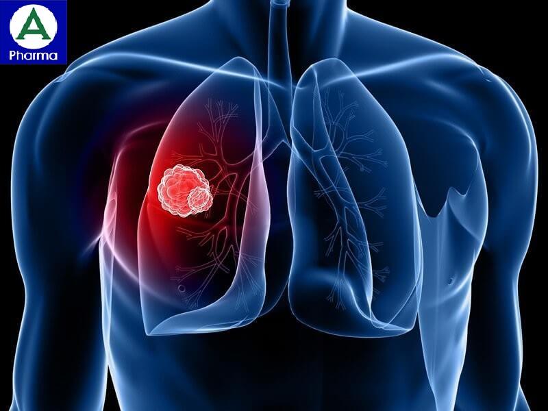 Thuốc Lincomycin dùng trong các trường hợp nhiễm khuẩn nặng