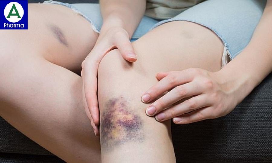 Thuốc Long huyết P/H giúp tan bầm tím hiệu quả