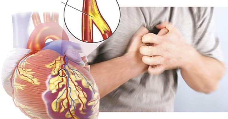 Bệnh đau thắt ngực là gì?