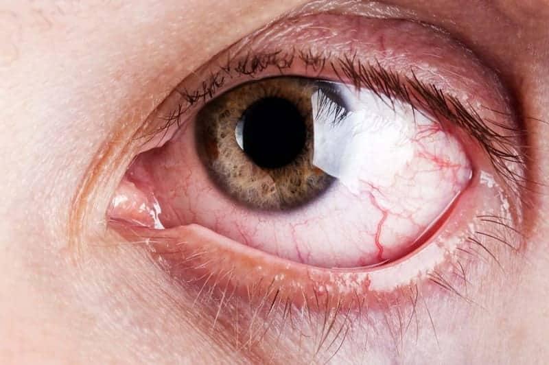 Võng mạc bị xuất huyết thường do các bệnh lý về mạch máu của võng mạc