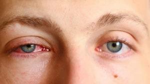 Bệnh viêm bờ mi hiện nay khá phổ biến ở tất cả mọi lứa tuổi