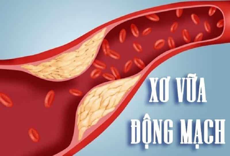 Bệnh xơ vữa động mạch