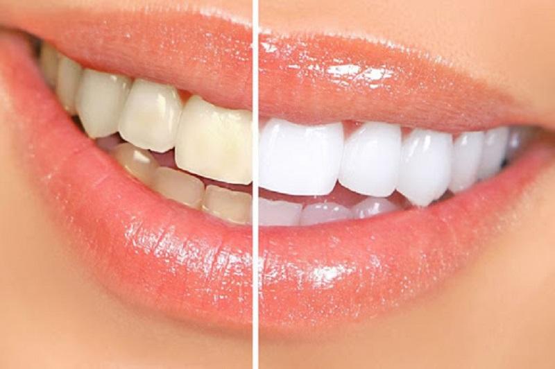 Tác dụng tăng cường sức khỏe răng miệng