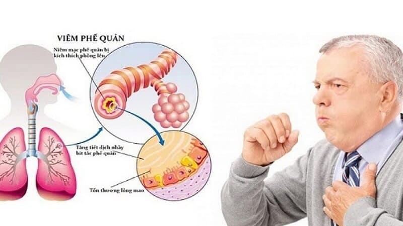 Cây mạch môn điều trị viêm phế quản