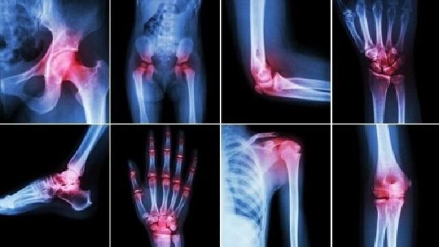 Celecoxib 200mg 3x10 Vidiphar dùng để điều trị xương khớp
