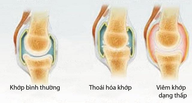 Tác dụng duy trì sức khỏe xương khớp