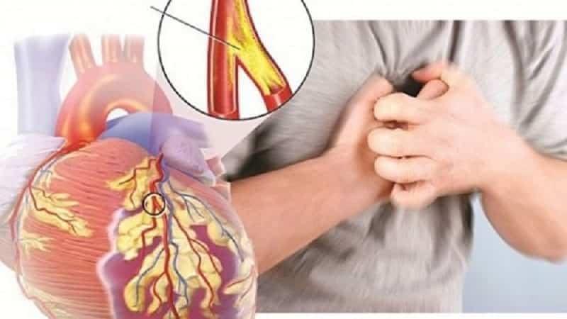 Chuẩn đoán bệnh xơ vữa động mạch