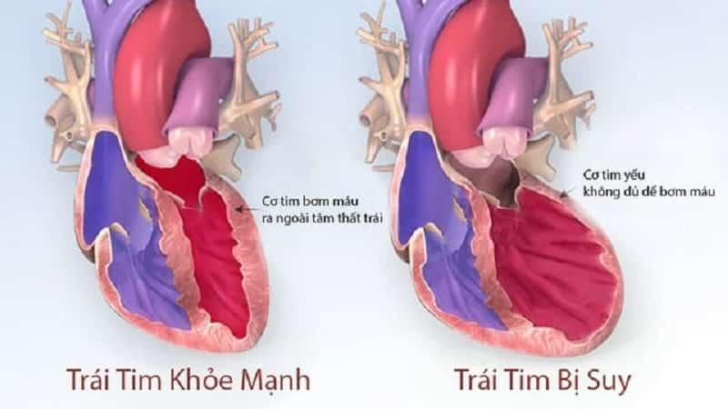 Suy tim có thể khiến cơ thể bị thiếu máu do cơ tim yếu