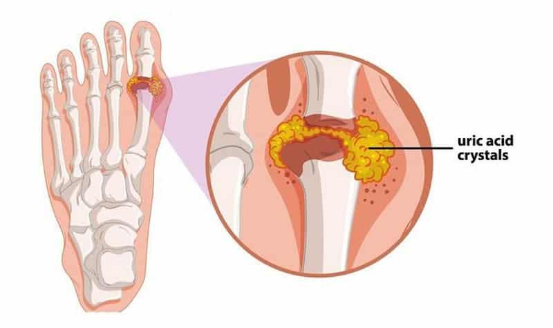 Bệnh gout, đau nhức xương khớp