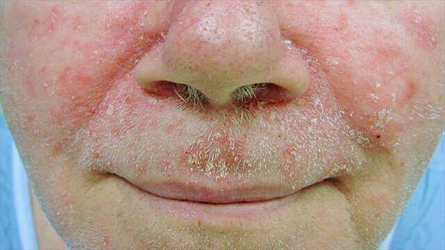 Công dụng của thuốc trị nấm da Comozol Cream Daehwa như thế nào?