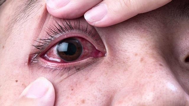 Công dụng của thuốc nhỏ mắt Cooldrop 10ML Pharmedic