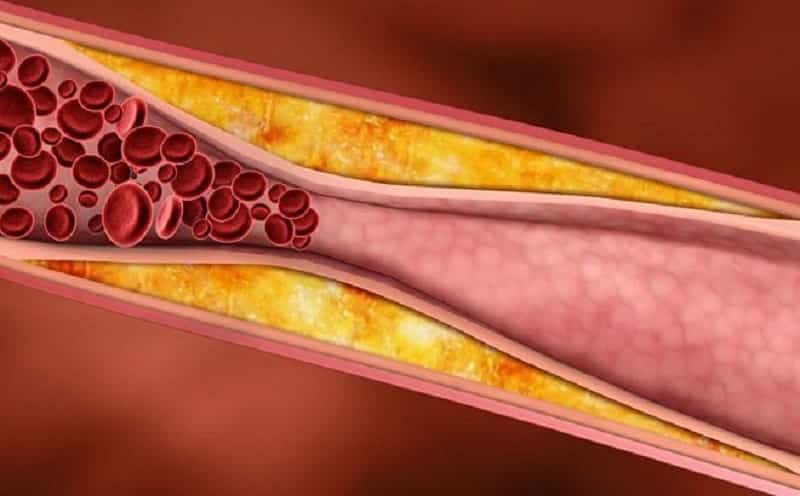 Dấu hiệu của bệnh xơ vừa động mạch