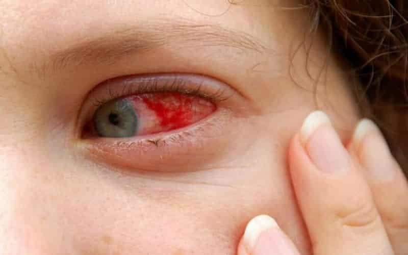 Dấu hiệu của bệnh xuất huyết võng mạc