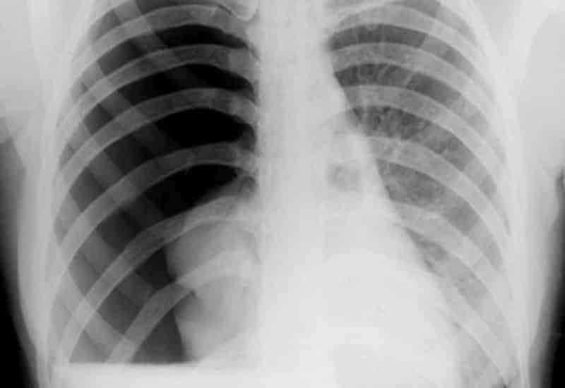 Đau thắt ngực do tràn khí màn phổi