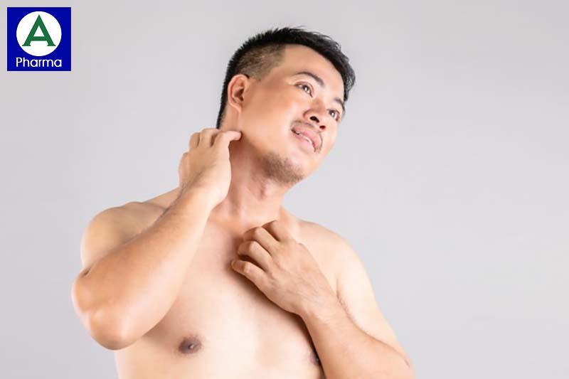 Diflucan 150 mg điều trị bệnh nấm da