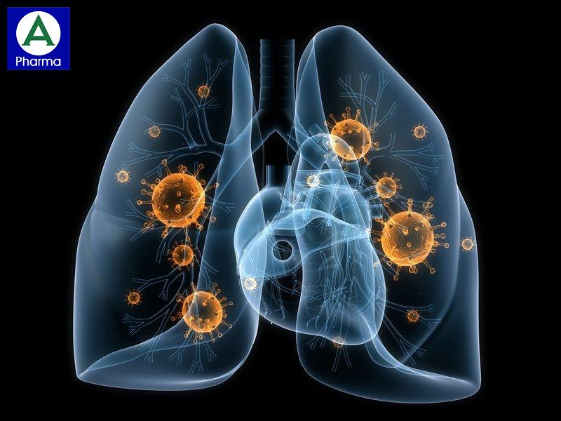 Doromax 200mg điều trị viêm phổi mắc phải tại cộng đồng