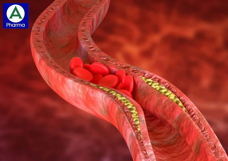 Dorotor 20mg trị rối loạn lipid máu