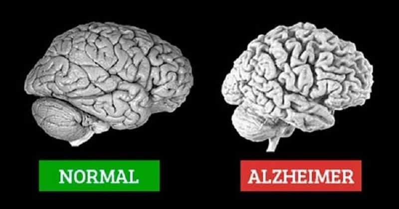 Hình ảnh não của người bình thường và não của người bị Alzheimer