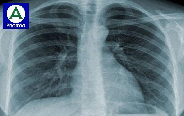 Hình X - quang viêm phổi do Pneumocytis carinii