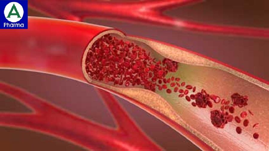 Thuốc Lovenox chống đông máu và tan huyết khối