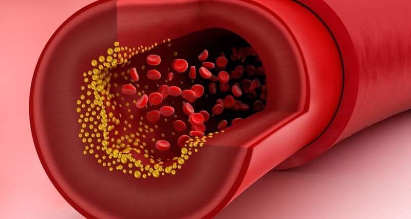 Kiểm tra nồng độ cholesterol trong máu