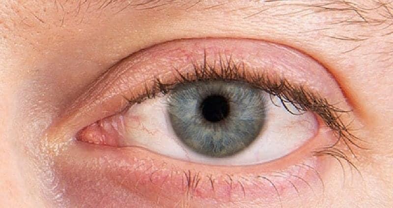 Bệnh khô mắt làm giảm sút thị lực và hiệu suất làm việc của con người