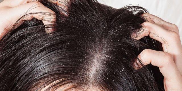 Thuốc Nizoral Shampoo có tác dụng như thế nào?