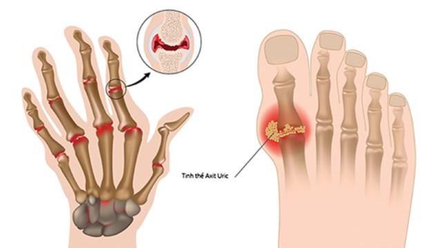 Tác dụng hỗ trợ điều trị bệnh gout