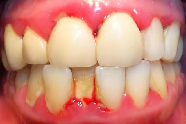 Tác dụng hỗ trợ giảm đau trong các trường hợp sưng nướu răng, đau răng