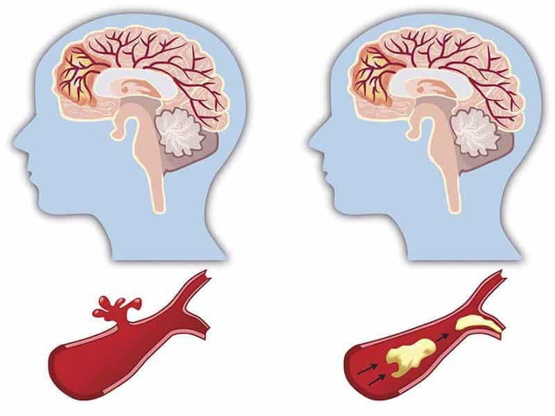 Tai biến mạch máu não nhẹ
