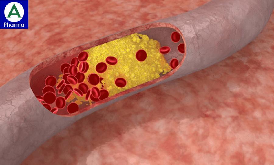 Thuốc Lipitor giúp hạ mỡ máu.