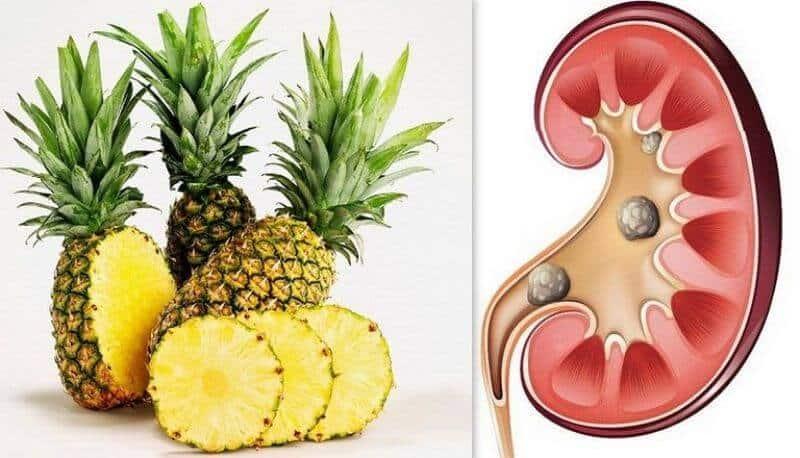 Công dụng của Trái thơm đối với sức khỏe con người