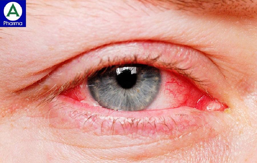 Thuốc Lexvotene-S giúp giảm các triệu chứng khó chịu của viêm kết mạc dị ứng