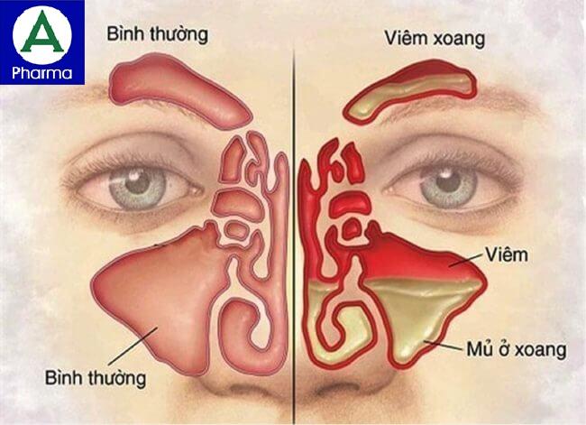Thuốc Kim Long dùng trong bệnh viêm mũi, xoang