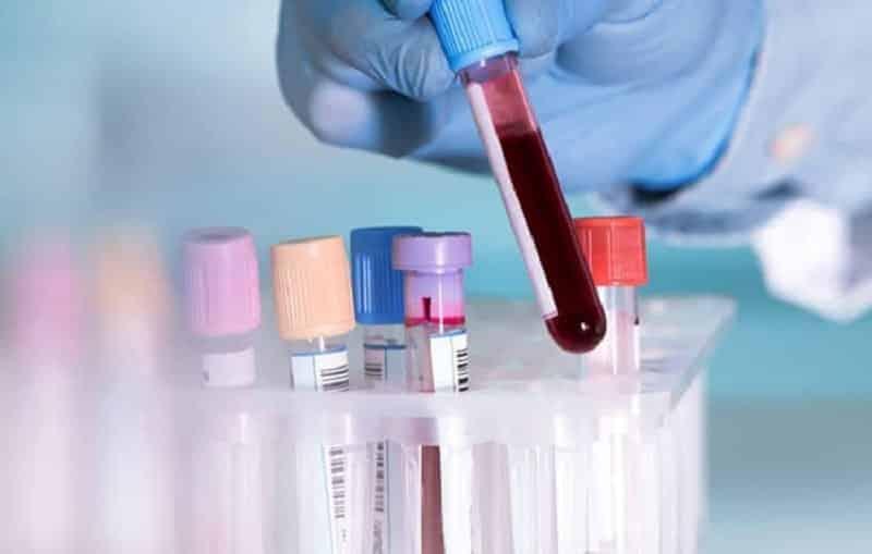 Thực hiện một số xét nghiệm để kiểm tra nồng độ vitamin B1 trong cơ thể